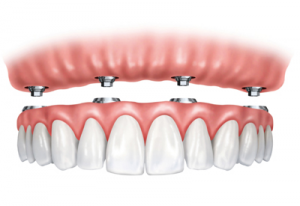 Dentures in Brigham City - Skyline Dental